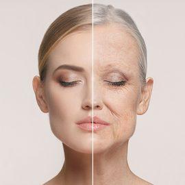 Aging: Wrinkles, Folds & Laxity