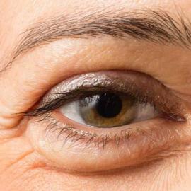 Eyes: Bags, Droopy Eyelids