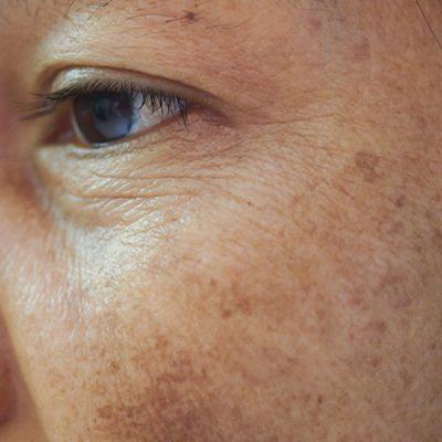 Pigmentation: Age Spots, Freckles, Melasma