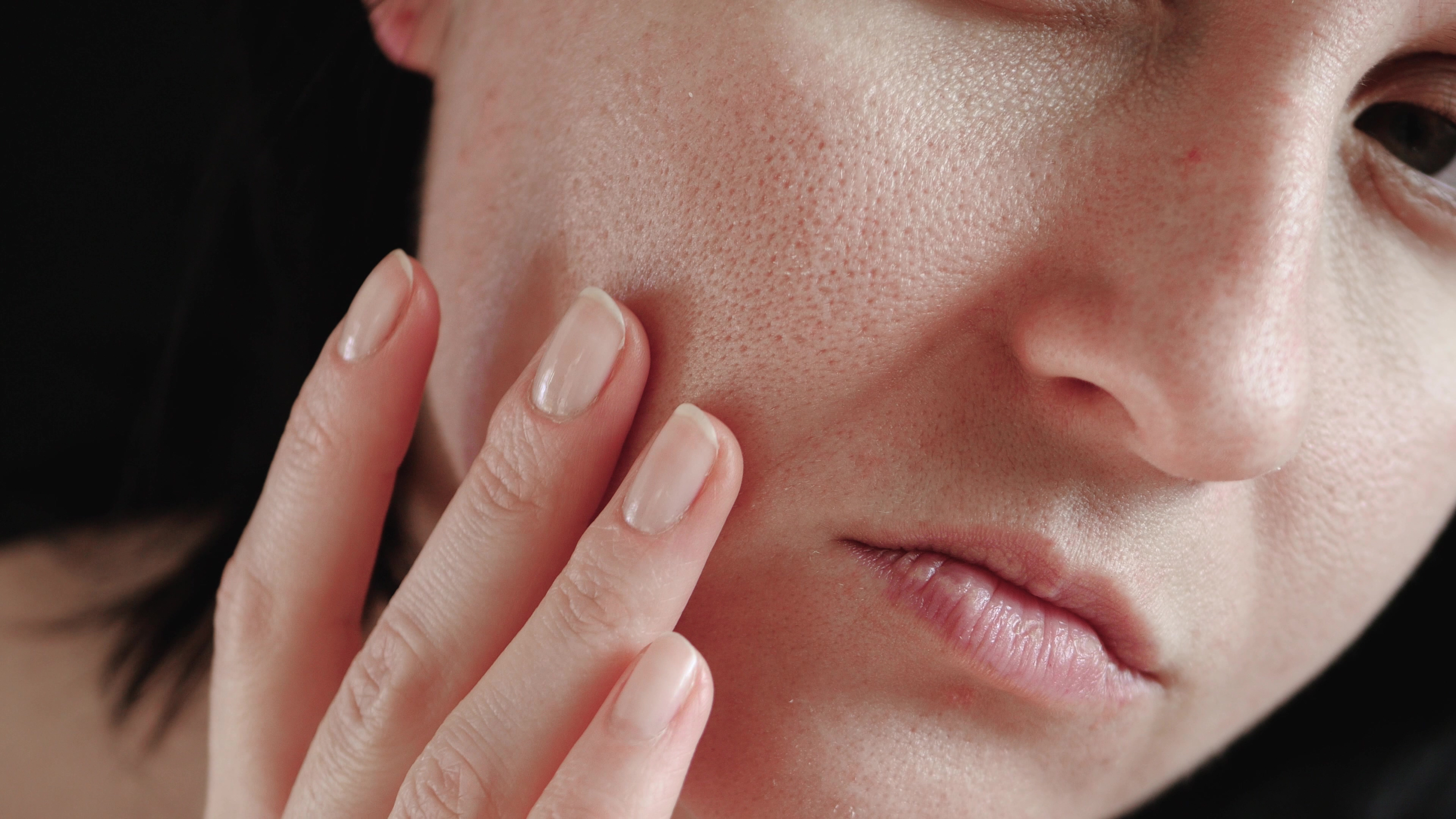 Skin: Open Pores, Oily, Congested