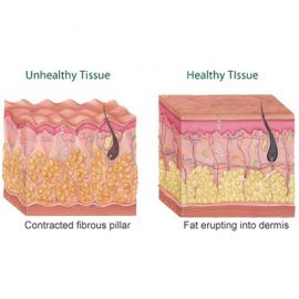 Stubborn Fat and Cellulite