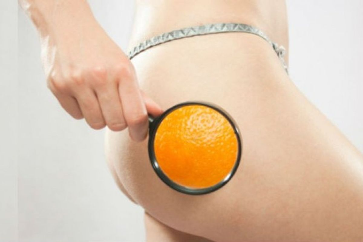 The Nightmare Called Cellulite