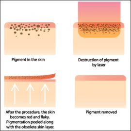 Redness, Rosacea & Broken Capillaries