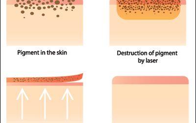 Pigmentation & Vascular Laser