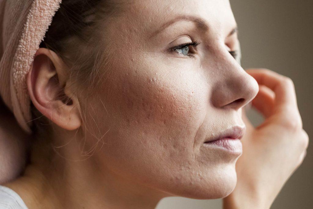 About Subcision Treatment
