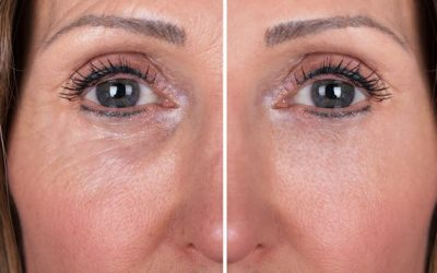 Skin Boosters – The Lesser Known Cosmetic Injectable Treatment