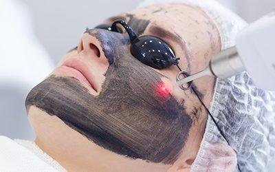 6 Benefits Of Carbon Laser Treatment